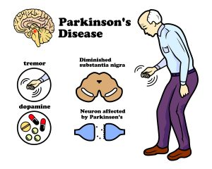 parkinson\'s disease may be stopped.