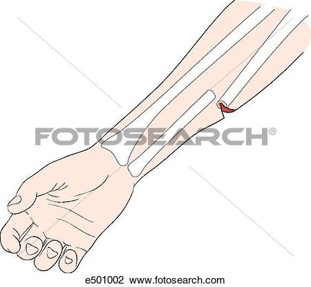Clip Art of Open fracture of the radius penetrating the skin.