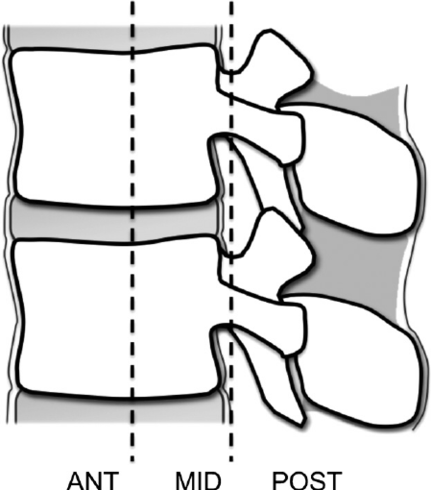 Easily missed thoracolumbar spine fractures (PDF Download Available).