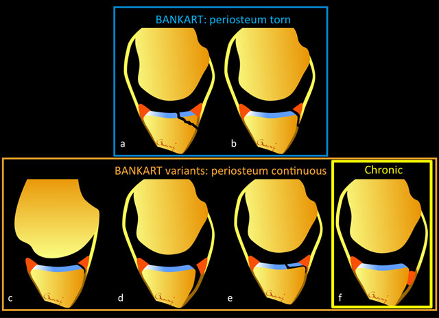Advanced Imaging of Glenohumeral Instability: It May Be Less.