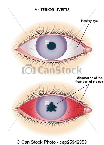 Clipart Vector of uveitis.