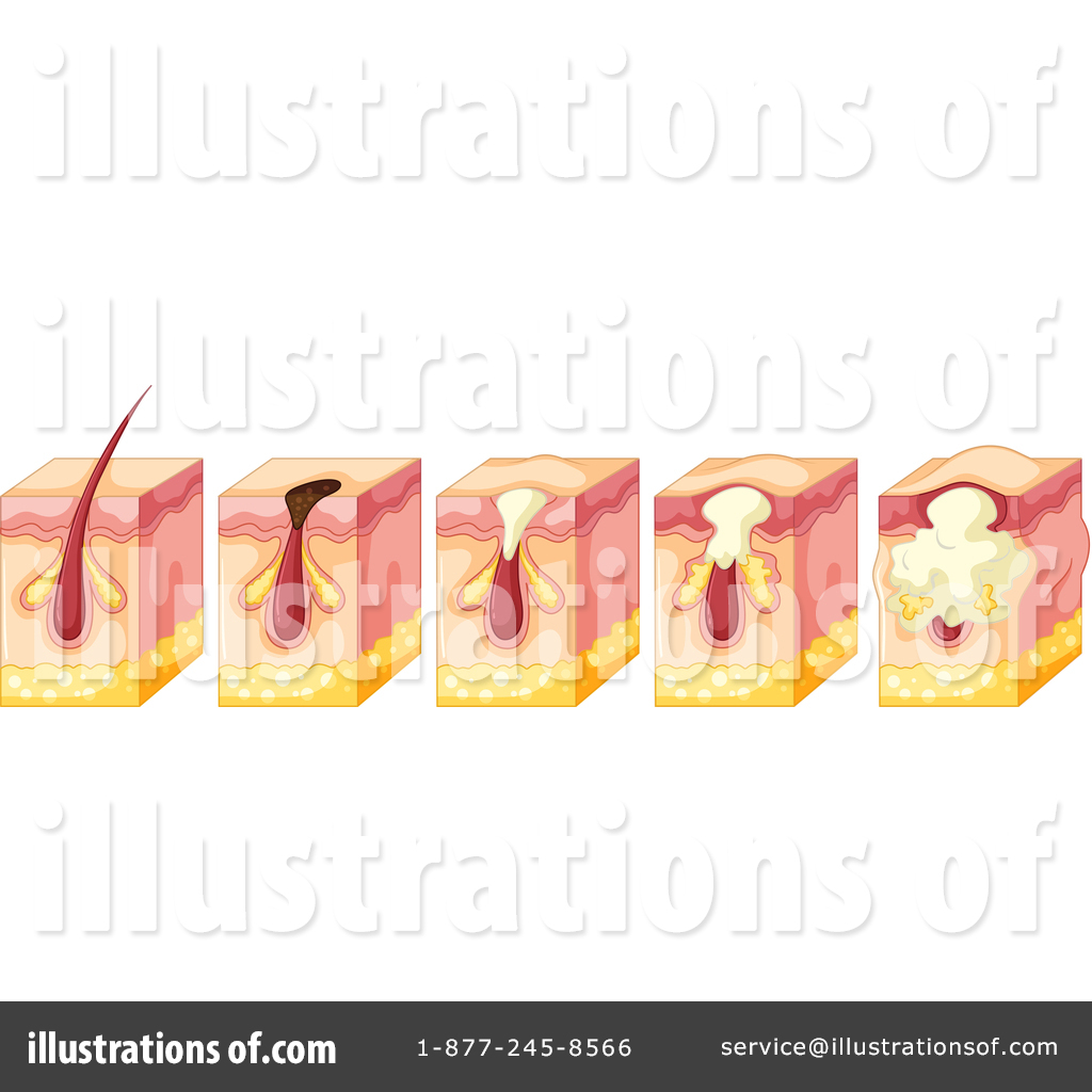 Pimple Clipart #1445797.