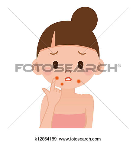 Clipart of Formation of skin acne and pimples k6231870.