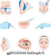 Plastic Surgery Clip Art.