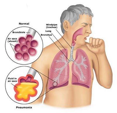 Pneumonia clipart » Clipart Station.