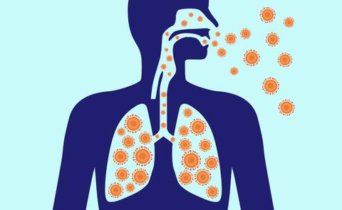 Pneumonia 101: Causes, Symptoms, Treatment & Prevention.