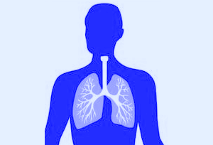 Free Pneumonia Cliparts, Download Free Clip Art, Free Clip.