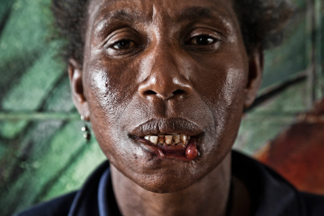 Crying Meri: Violence Against Women in Papua New Guinea.