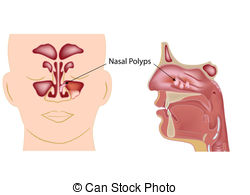 Polyp Stock Illustrations. 216 Polyp clip art images and royalty.