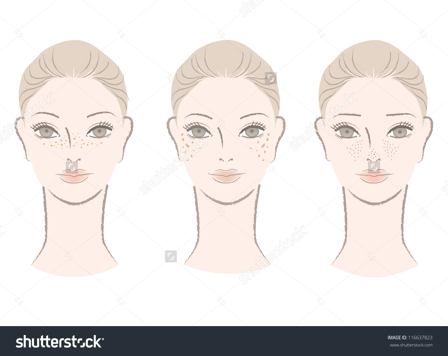 Beautiful Woman Freckles Liver Spots Large Stock Vector 116637823.