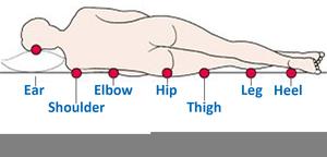 Clipart Pressure Ulcers.