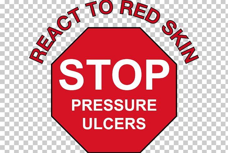 Bed Sore Pressure Ulcer Skin Care Preventive Healthcare.