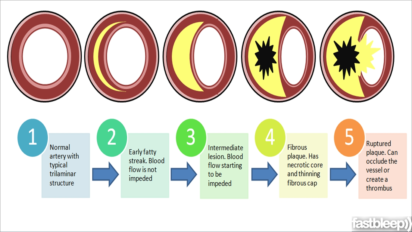 Cellular events in atherosclerosis.
