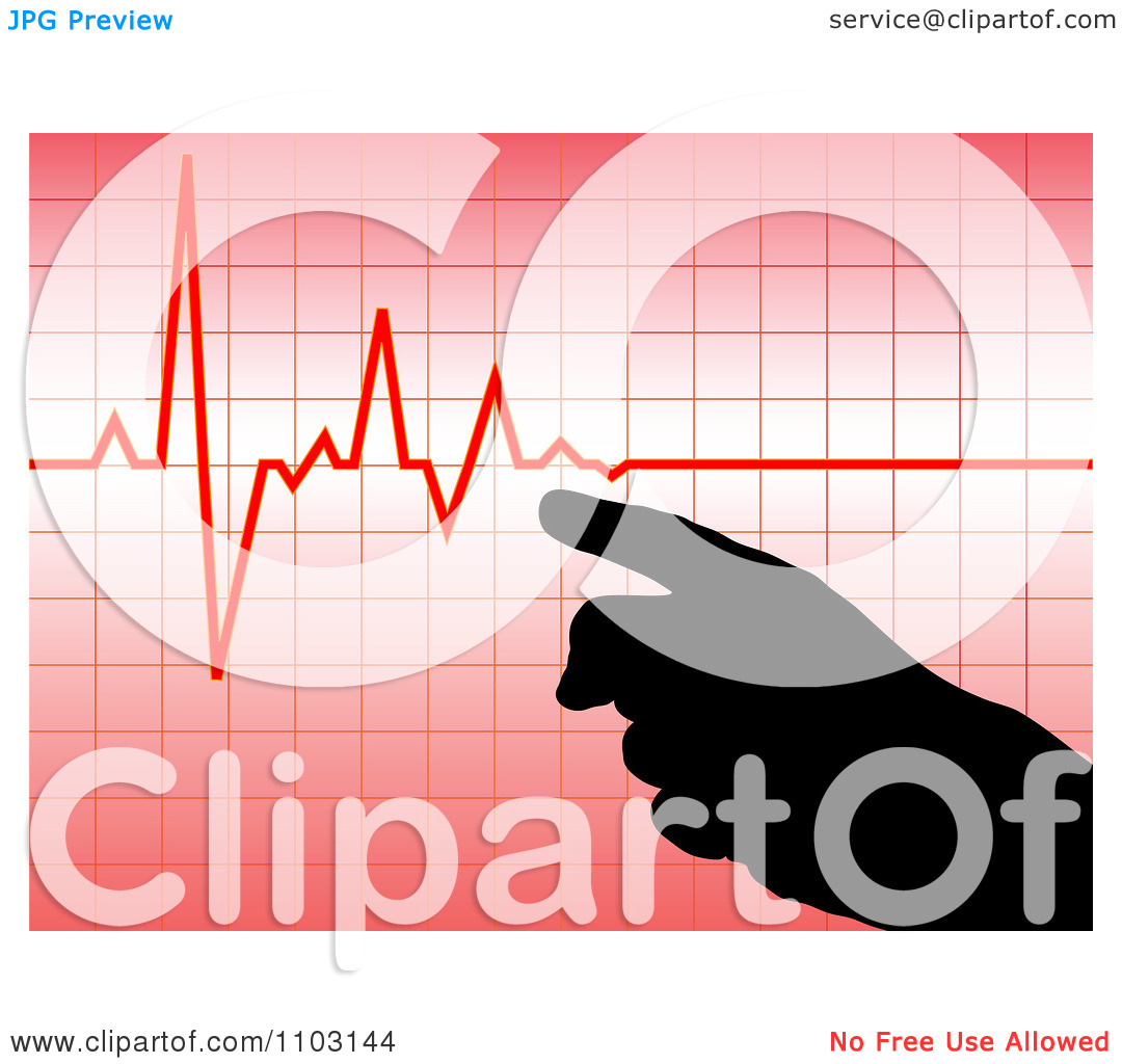 Clipart Silhouetted Hand Pointing To A Pulse Heart Beat Cardiogram.