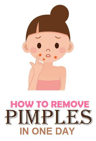 1000+ images about Get Rid of a Pimple on Pinterest.