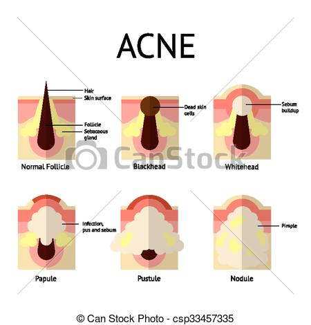 Vectors of Types of acne pimples. Healthy skin, Whiteheads and.