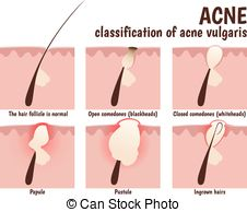 Acne Illustrations and Clipart. 797 Acne royalty free.
