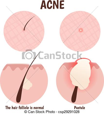 Vector Illustration of structure of the hair follicle, problem.