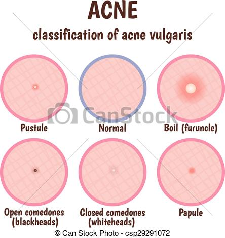 Vectors Illustration of problem skin with pustules, acne, open.