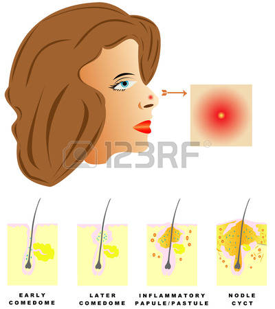 808 Pimple Stock Illustrations, Cliparts And Royalty Free Pimple.