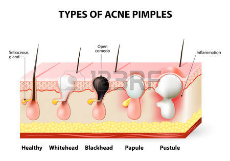 326 Pimples Stock Illustrations, Cliparts And Royalty Free Pimples.