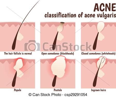 Clipart Vector of structure of the hair follicle, problem skin.