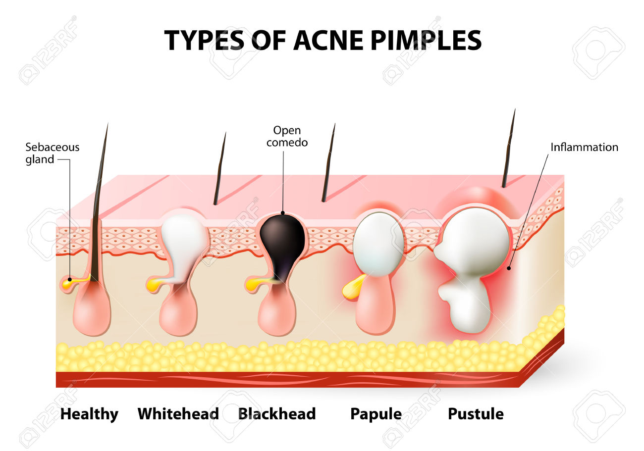 Types Of Acne Pimples. Healthy Skin, Whiteheads And Blackheads.