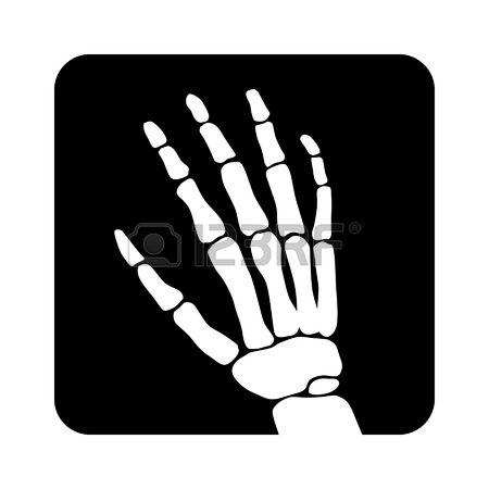996 Radiography Cliparts, Stock Vector And Royalty Free.