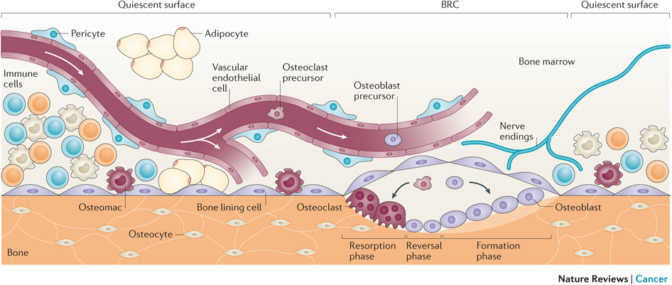 Bone metastasis: the importance of the neighbourhood : Nature.