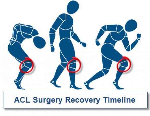 1000+ images about ACL Surgery and Recovery on Pinterest.