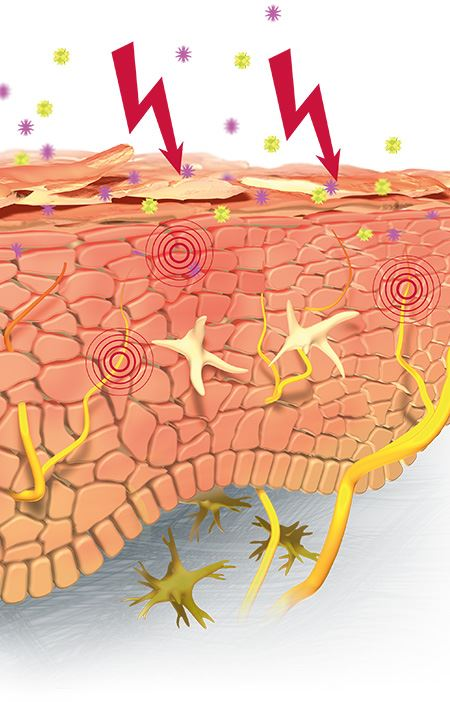 Eucerin: Hypersensitive, redness.