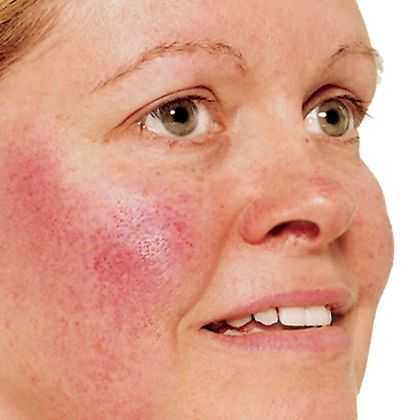 1000+ images about Skin Care.