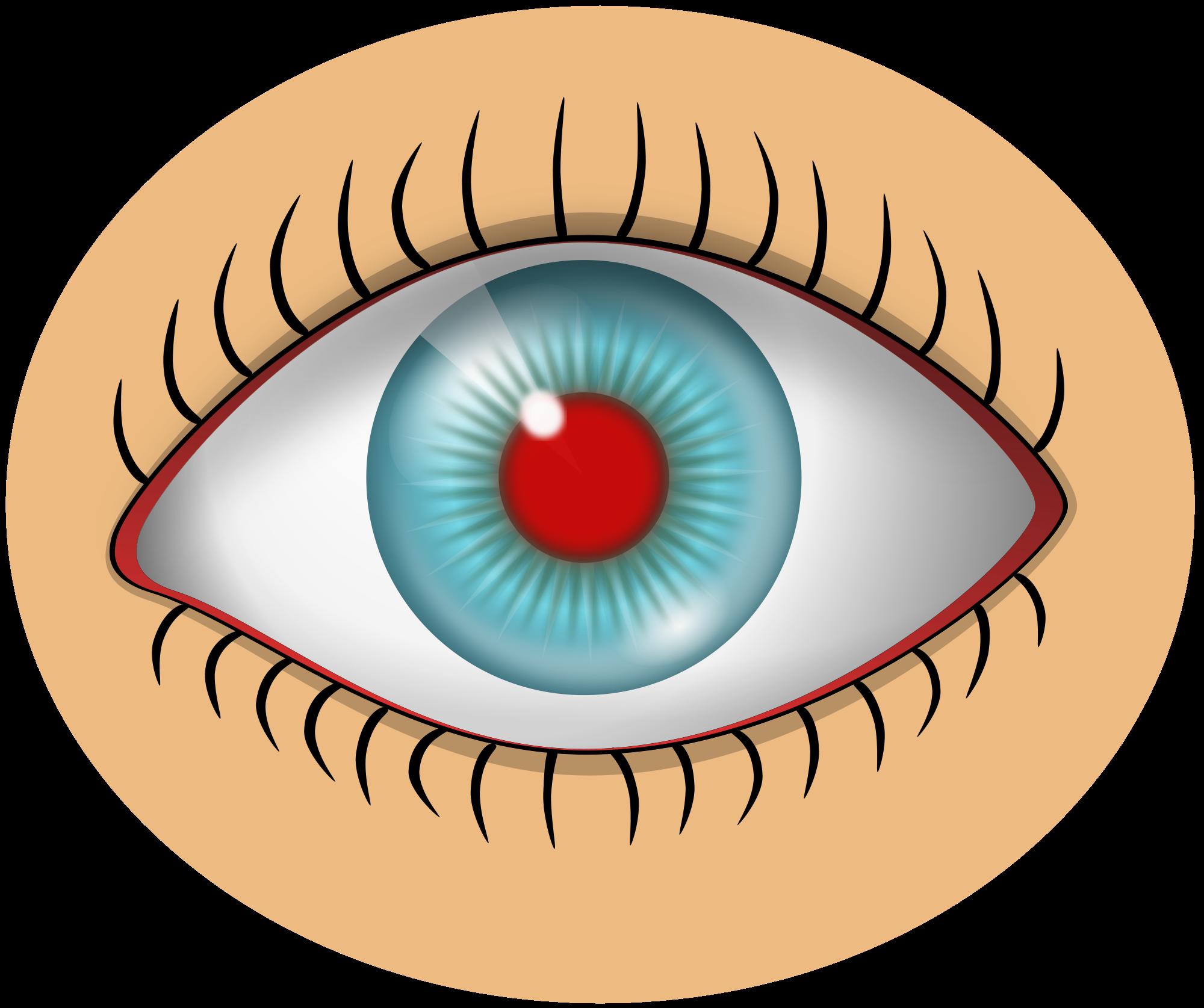 Eye Inflammation Clip Art.