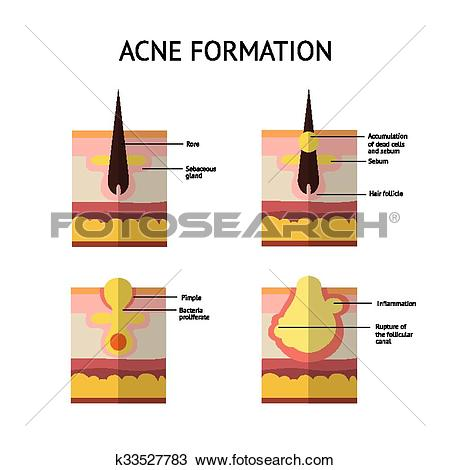 Clipart of Formation of skin acne or pimple. The sebum in the.