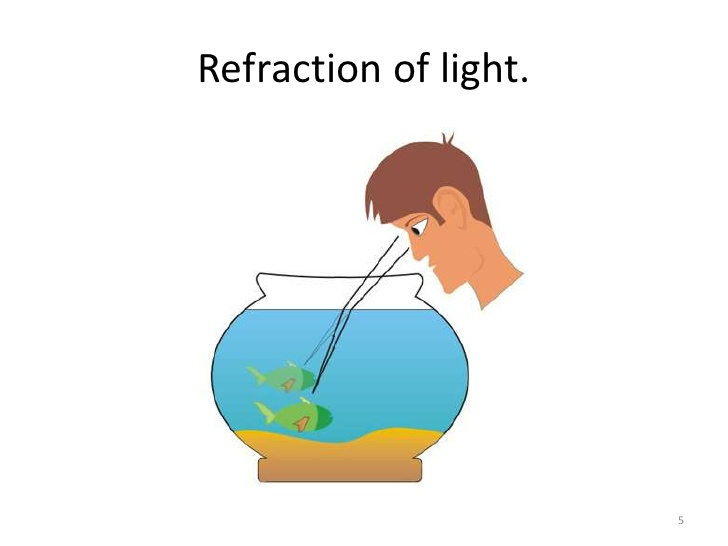phthalmology.Refractive errors.(dr.ali).