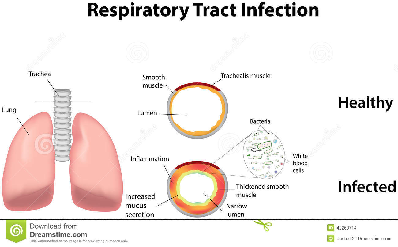 Respiratory Tract Infection Stock Vector.