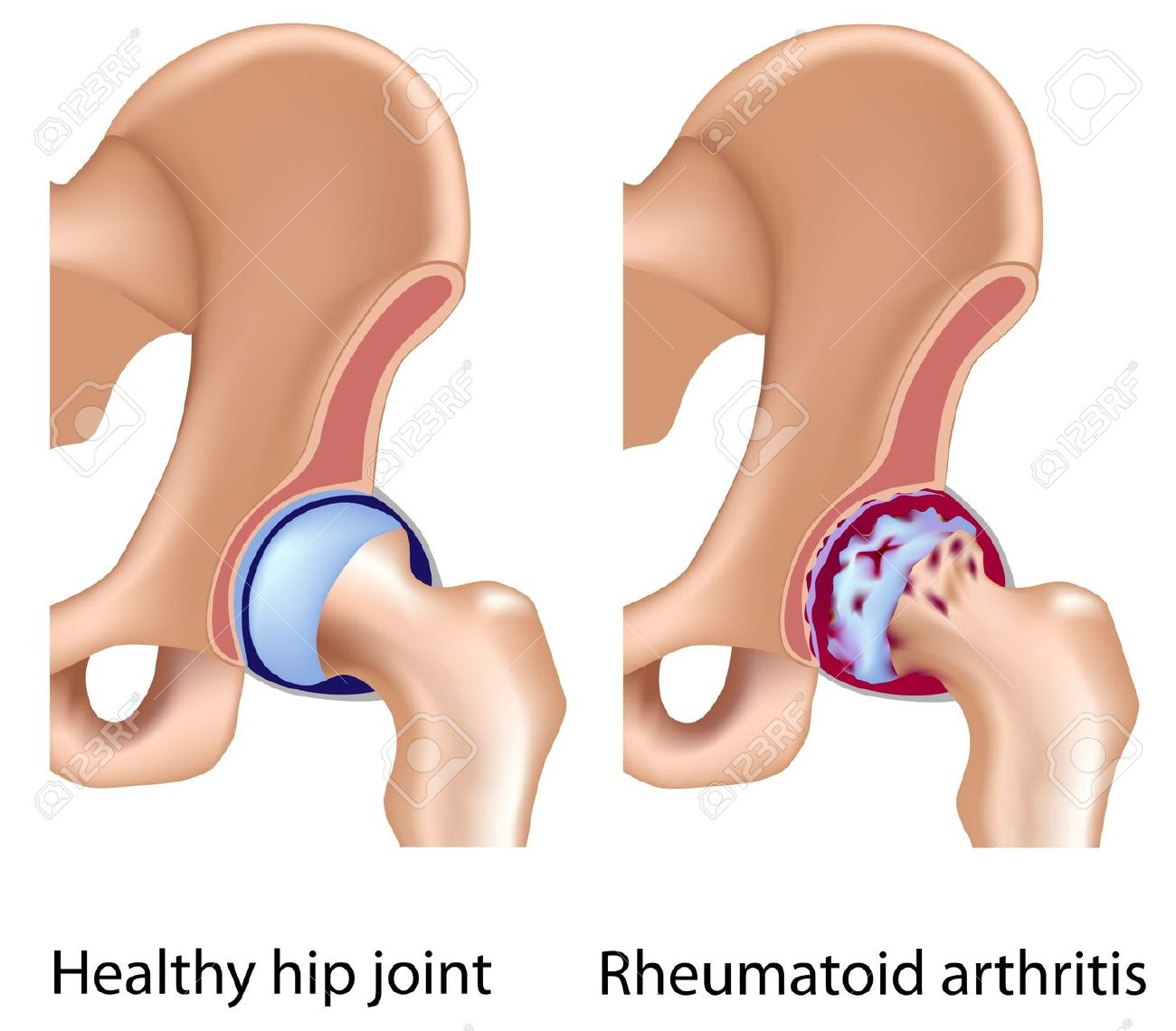 Rheumatoid Arthritis Of Hip Joint, Eps8 Royalty Free Cliparts.