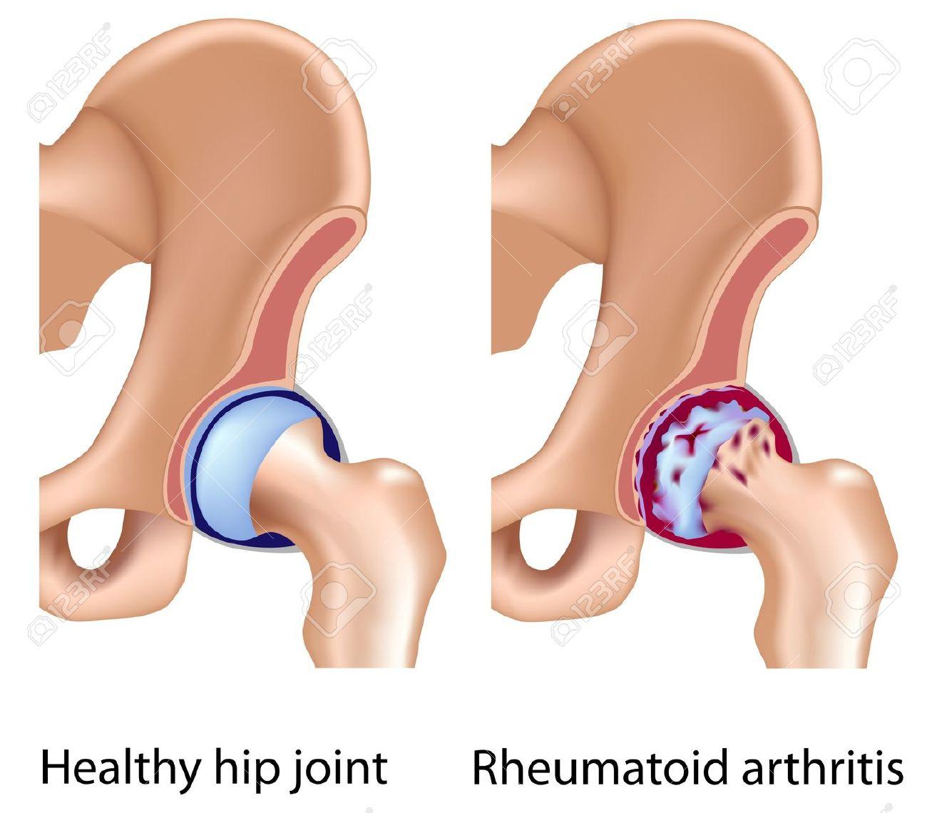 Rheumatoid Arthritis Of Hip Joint, Eps8 Royalty Free Cliparts.