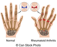 Rheumatism Illustrations and Clip Art. 3,518 Rheumatism royalty.