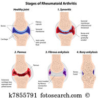 Rheumatism Clip Art Illustrations. 281 rheumatism clipart EPS.