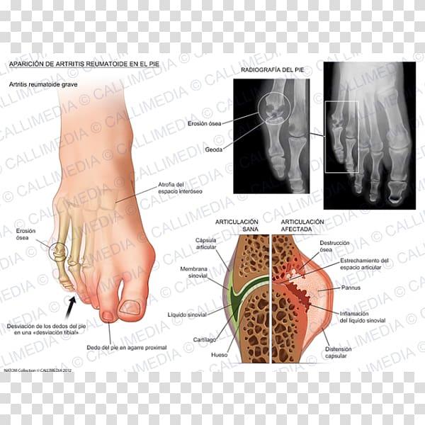 Rheumatoid arthritis Foot Thumb Rheumatology, others.