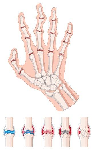 Rheumatoid Arthritis Diagram ON White premium clipart.