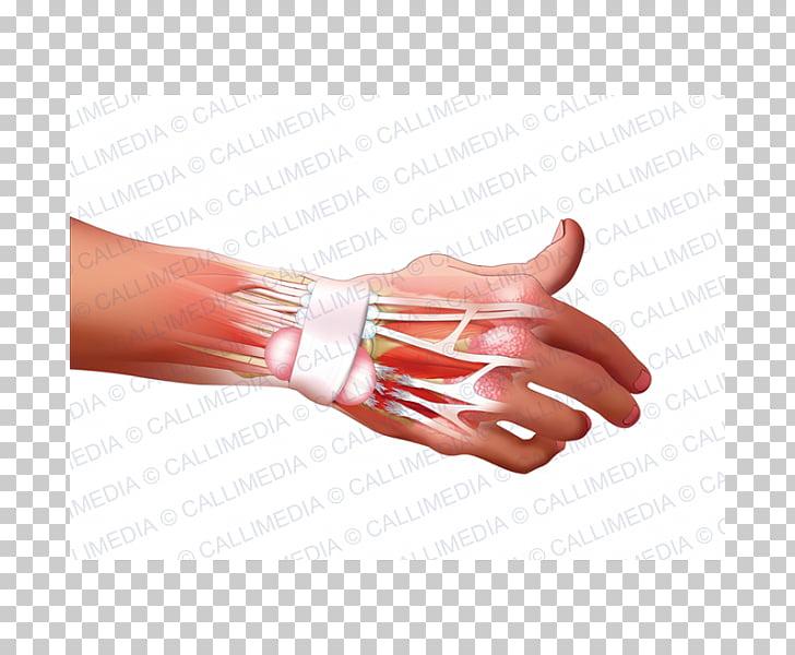 Hand model Nail Rheumatoid arthritis Disease, hand PNG.