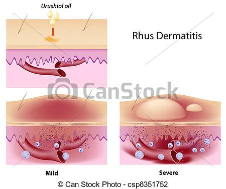 Vector Illustration of Rhus contact dermatitis, eps8.
