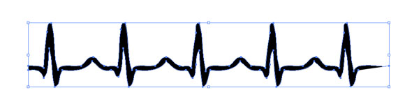 Normal Sinus Rhythm Clipart.