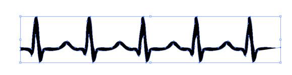 Normal Sinus Rhythm Clipart.