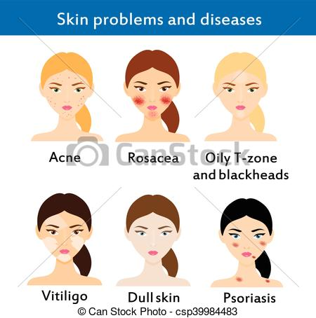 Vector of Skin problems and diseases. Acne, rosacea, vititligo and.