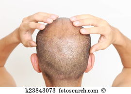 Scalp Stock Photos and Images. 1,393 scalp pictures and royalty.