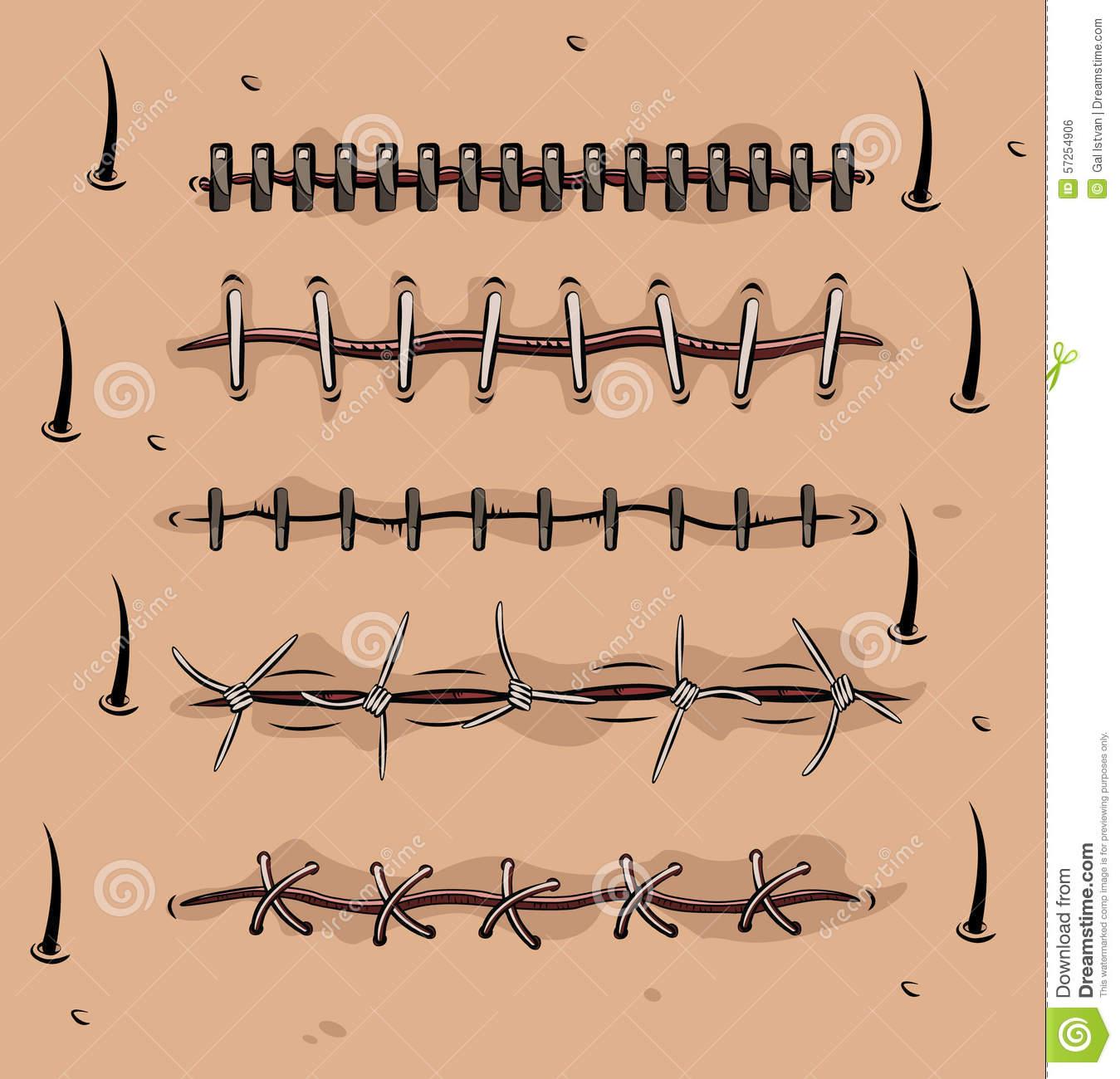 Scars Stock Illustrations.