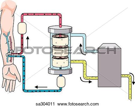 Clipart of Schematic dialysis demonstrating the principles of.